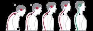 chiropractic bio physics