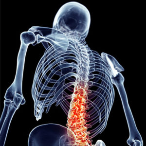 cbp-back-pain